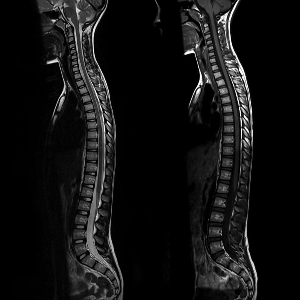 X-ray showing spinal injuries