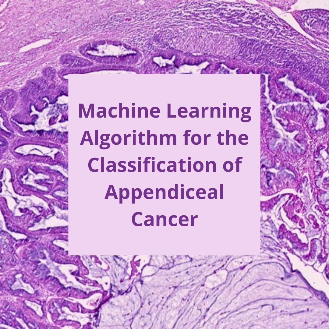 appendiceal cancer